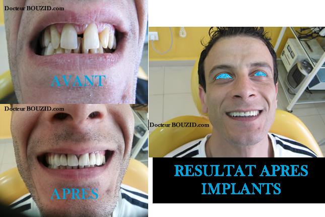 cabinet dentaire dr bouzid implants dentaires. Black Bedroom Furniture Sets. Home Design Ideas