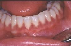 la femme enceinte dent d vitalis e le bridge la carie dentaire les aphtes appareil le. Black Bedroom Furniture Sets. Home Design Ideas